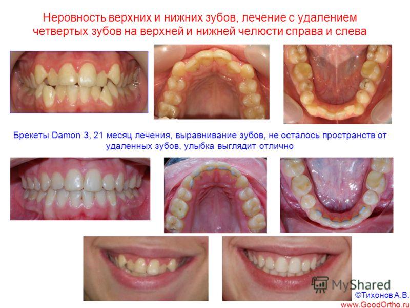 Неровность верхних и нижних зубов, лечение с удалением четвертых зубов на верхней и нижней челюсти справа и слева Брекеты Damon 3, 21 месяц лечения, выравнивание зубов, не осталось пространств от удаленных зубов, улыбка выглядит отлично ©Тихонов А.В.