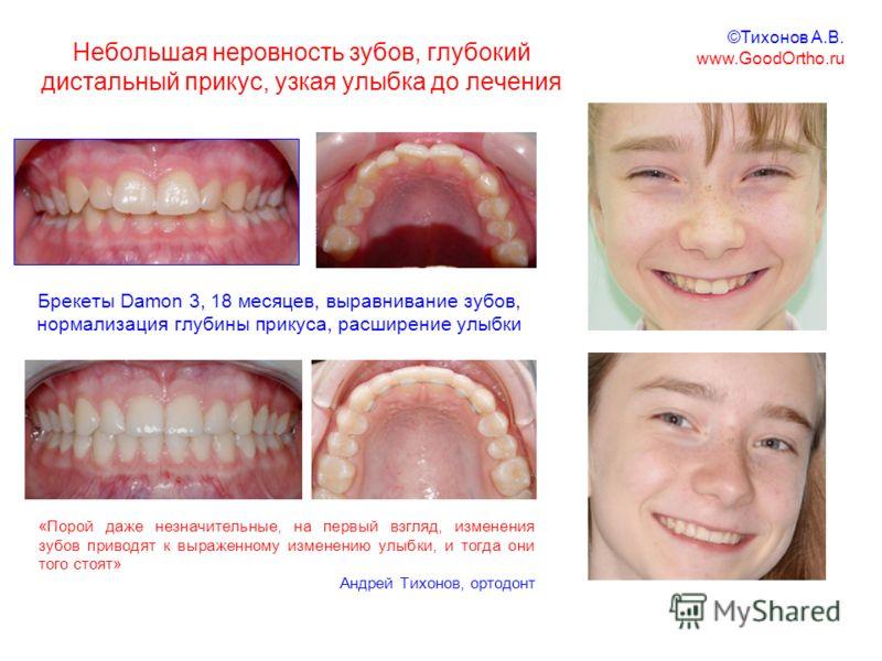 Небольшая неровность зубов, глубокий дистальный прикус, узкая улыбка до лечения Брекеты Damon 3, 18 месяцев, выравнивание зубов, нормализация глубины прикуса, расширение улыбки «Порой даже незначительные, на первый взгляд, изменения зубов приводят к