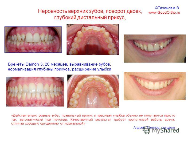 Неровность верхних зубов, поворот двоек, глубокий дистальный прикус, Брекеты Damon 3, 20 месяцев, выравнивание зубов, нормализация глубины прикуса, расширение улыбки «Действительно ровные зубы, правильный прикус и красивая улыбка обычно не получаются