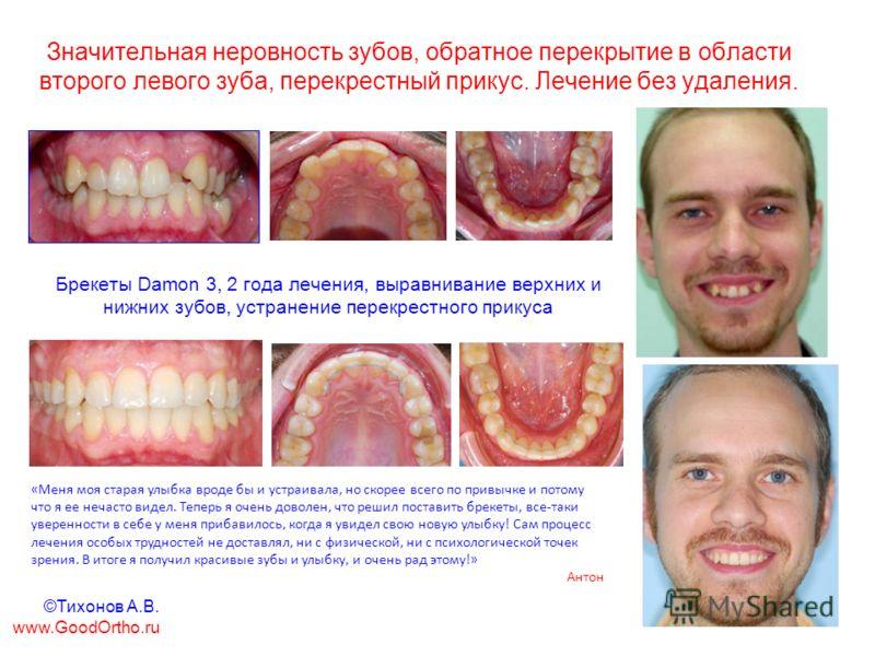 Значительная неровность зубов, обратное перекрытие в области второго левого зуба, перекрестный прикус. Лечение без удаления. Брекеты Damon 3, 2 года лечения, выравнивание верхних и нижних зубов, устранение перекрестного прикуса «Меня моя старая улыбк