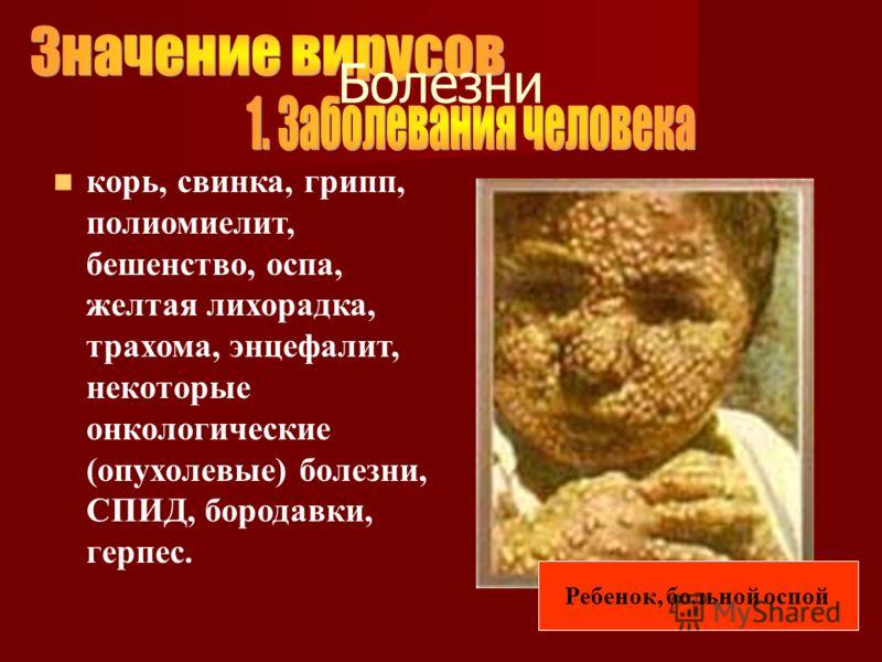 корь, свинка, грипп, полиомиелит, бешенство, оспа, желтая лихорадка, трахома, энцефалит, некоторые онкологические (опухолевые) болезни, СПИД, бородавки, герпес. Ребенок, больной оспой Болезни