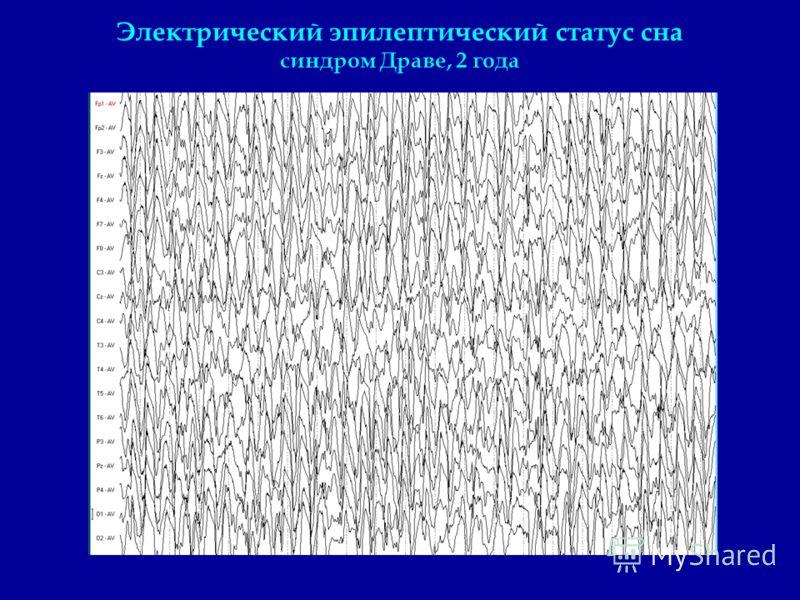 Электрический эпилептический статус сна синдром Драве, 2 года
