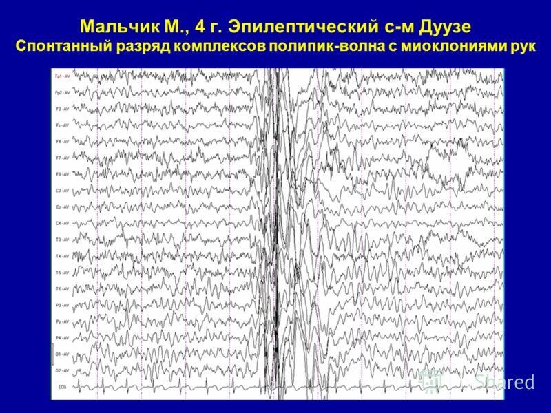Мальчик М., 4 г. Эпилептический с-м Дуузе Спонтанный разряд комплексов полипик-волна с миоклониями рук