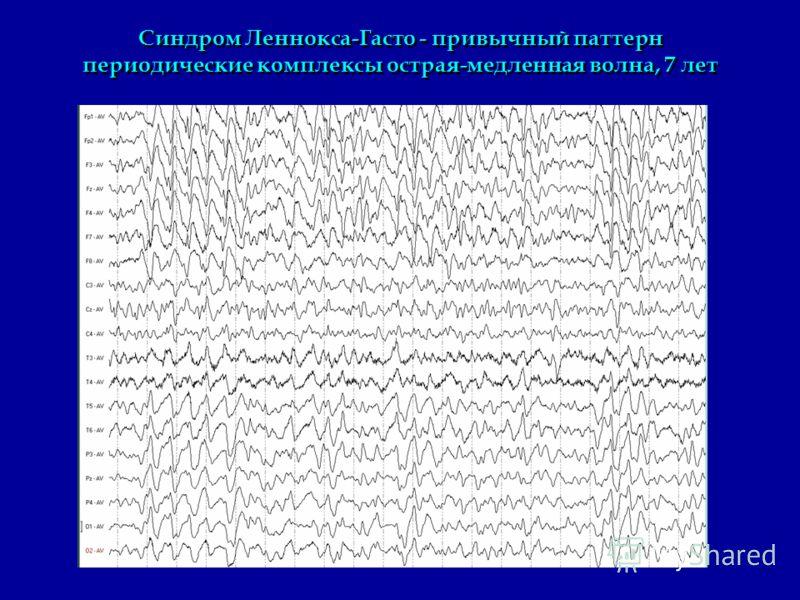 Синдром Леннокса-Гасто - привычный паттерн периодические комплексы острая-медленная волна, 7 лет