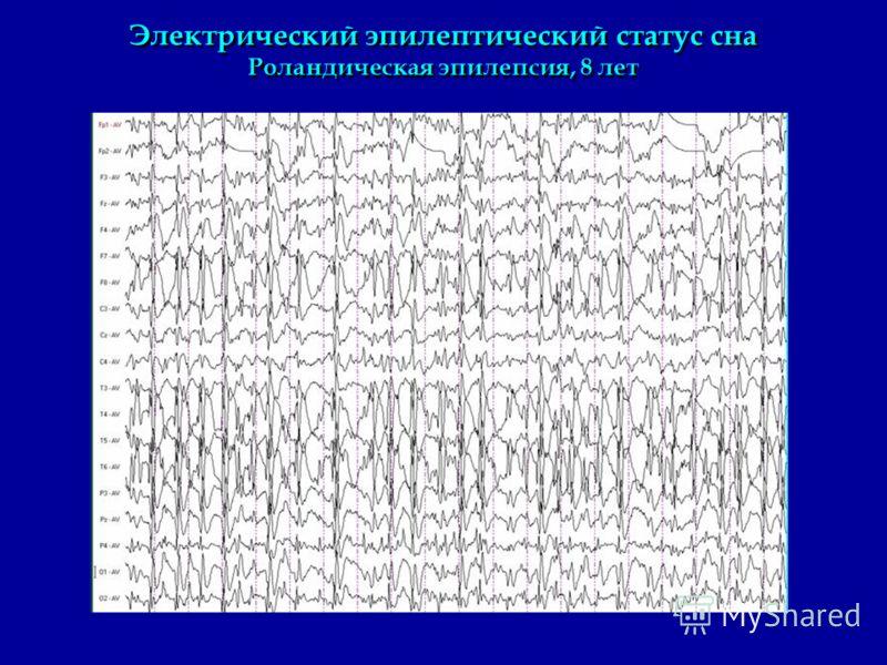 Электрический эпилептический статус сна Роландическая эпилепсия, 8 лет