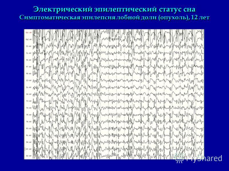 Электрический эпилептический статус сна Симптоматическая эпилепсия лобной доли (опухоль), 12 лет