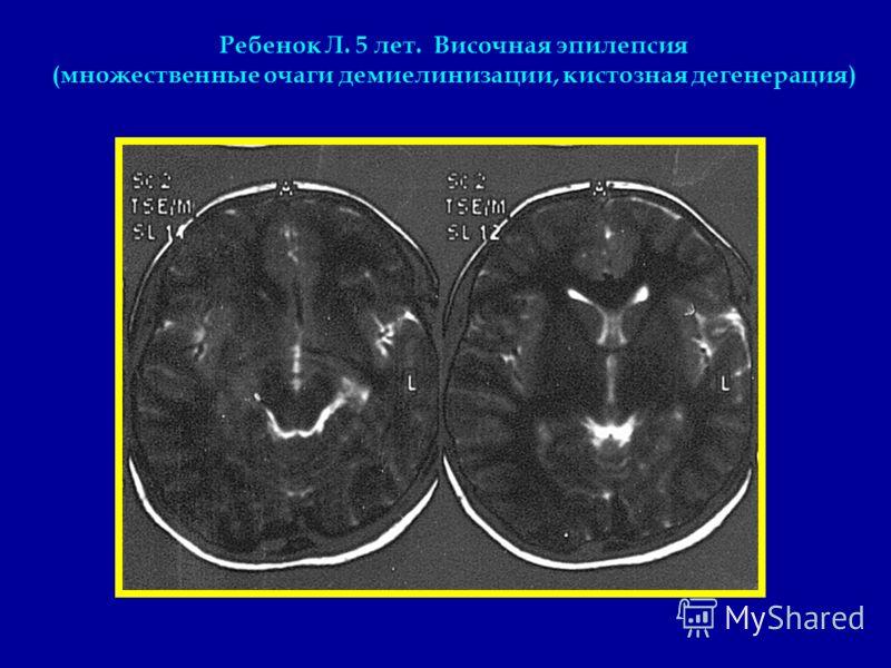Ребенок Л. 5 лет. Височная эпилепсия (множественные очаги демиелинизации, кистозная дегенерация)