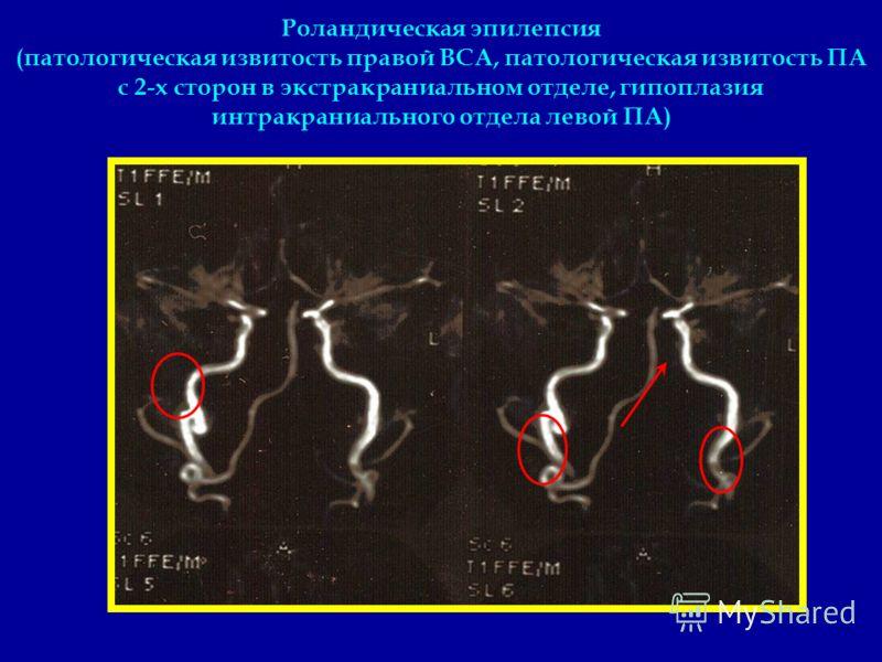 Роландическая эпилепсия (патологическая извитость правой ВСА, патологическая извитость ПА с 2-х сторон в экстракраниальном отделе, гипоплазия интракраниального отдела левой ПА)