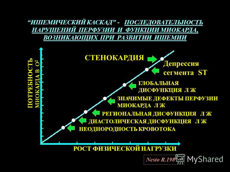 ИШЕМИЧЕСКИЙ КАСКАД - ПОСЛЕДОВАТЕЛЬНОСТЬ НАРУШЕНИЙ ПЕРФУЗИИ И ФУНКЦИИ МИОКАРДА, ВОЗНИКАЮЩИХ ПРИ РАЗВИТИИ ИШЕМИИ СТЕНОКАРДИЯ Депрессия сегмента ST ГЛОБАЛЬНАЯ ДИСФУНКЦИЯ Л Ж ЗНАЧИМЫЕ ДЕФЕКТЫ ПЕРФУЗИИ МИОКАРДА Л Ж РЕГИОНАЛЬНАЯ ДИСФУНКЦИЯ Л Ж ДИАСТОЛИЧЕСК