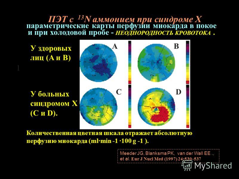 Количественная цветная шкала отражает абсолютную перфузию миокарда (ml·min -1 ·100 g -1 ). AB CD Meeder JG, Blanksma PK, van der Wall EE., et al. Eur J Nucl Med (1997) 24:530–537 параметрические карты перфузии миокарда в покое и при холодовой пробе -