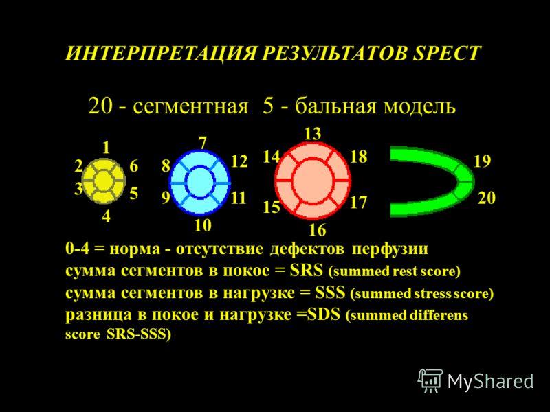 1 2 3 4 5 6 7 8 9 10 11 12 13 14 15 16 17 18 19 20 ИНТЕРПРЕТАЦИЯ РЕЗУЛЬТАТОВ SPECT 20 - сегментная 5 - бальная модель 0-4 = норма - отсутствие дефектов перфузии сумма сегментов в покое = SRS (summed rest score) сумма сегментов в нагрузке = SSS (summe