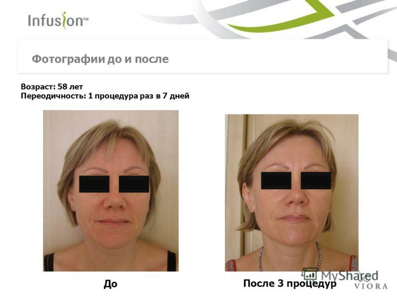 До После 3 процедур Возраст: 58 лет Переодичность: 1 процедура раз в 7 дней Фотографии до и после