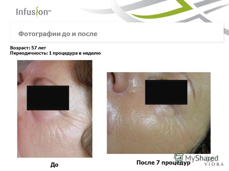 До Возраст: 57 лет Переодичность: 1 процедура в неделю Фотографии до и после После 7 процедур