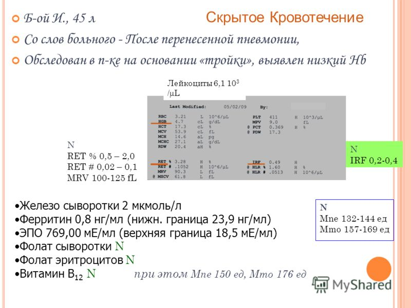 Б-ой И., 45 л Скрытое Кровотечение Со слов больного - После перенесенной пневмонии, Обследован в п-ке на основании «тройки», выявлен низкий Hb Железо сыворотки 2 мкмоль/л Ферритин 0,8 нг/мл (нижн. граница 23,9 нг/мл) ЭПО 769,00 мЕ/мл (верхняя граница