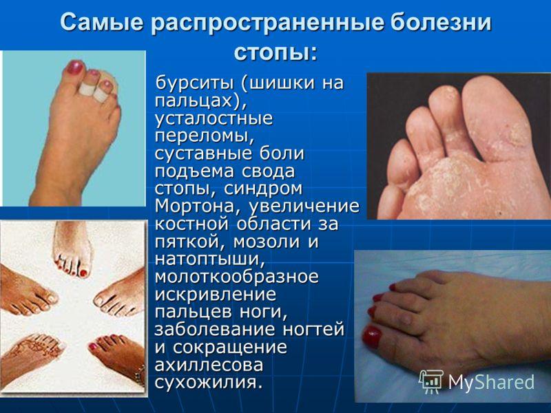 Самые распространенные болезни стопы: бурситы (шишки на пальцах), усталостные переломы, суставные боли подъема свода стопы, синдром Мортона, увеличение костной области за пяткой, мозоли и натоптыши, молоткообразное искривление пальцев ноги, заболеван