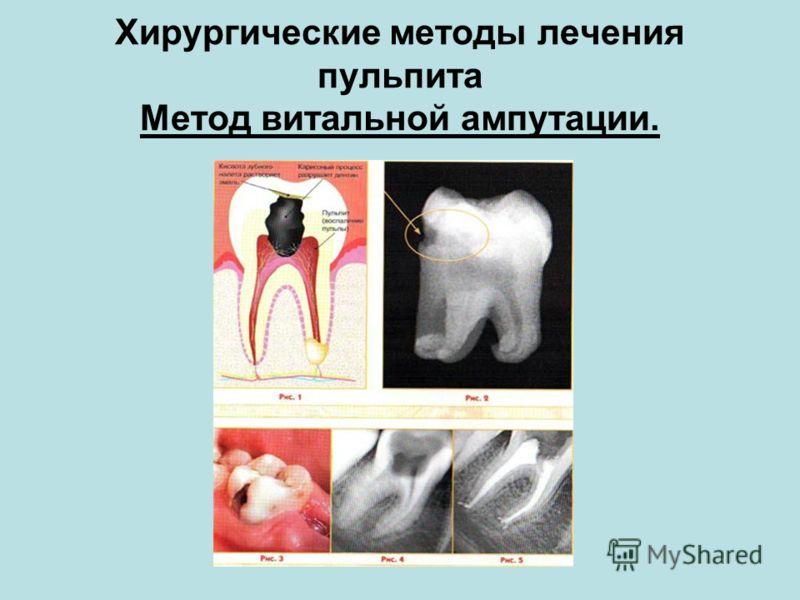 Хирургические методы лечения пульпита Метод витальной ампутации.