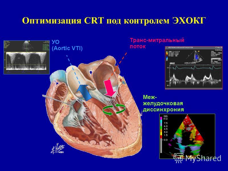Оптимизация CRT под контролем ЭХОКГ Транс-митральный поток УО (Aortic VTI) Меж- желудочковая диссинхрония