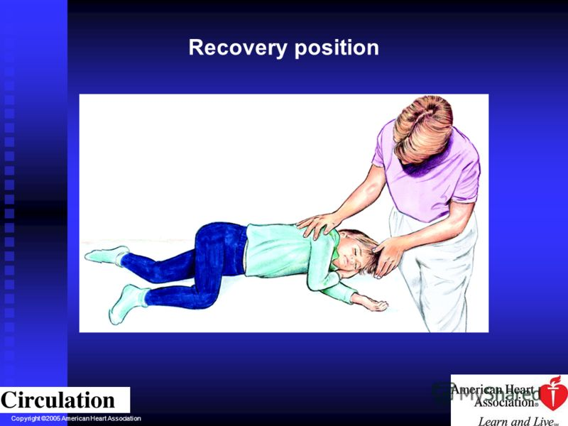 Copyright ©2005 American Heart Association Recovery position