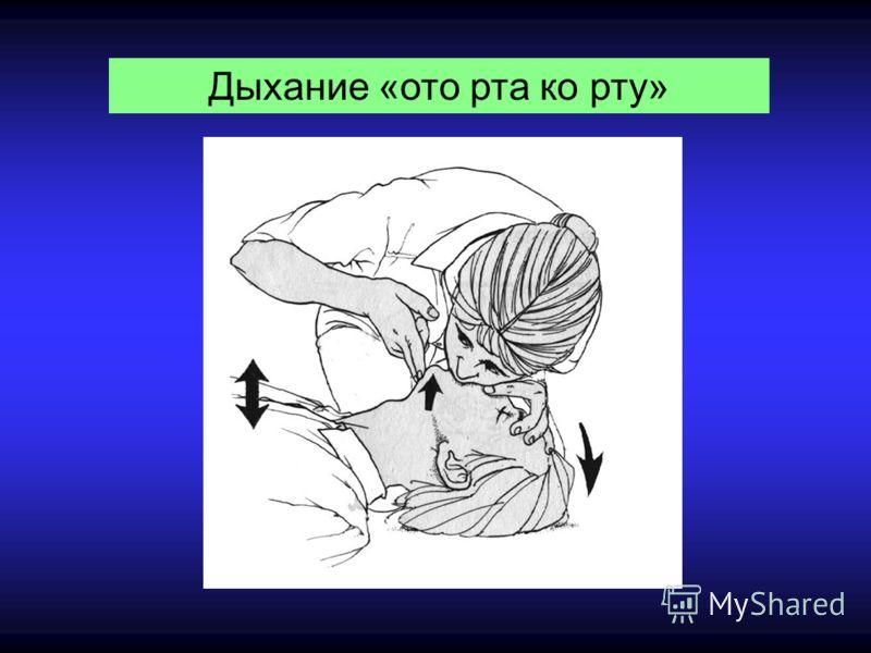 Дыхание «ото рта ко рту»