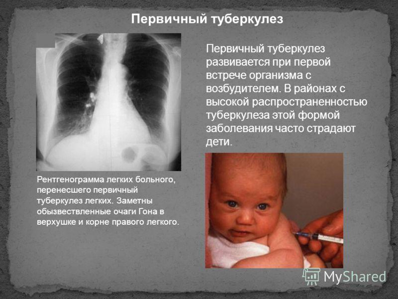 Рентгенограмма легких больного, перенесшего первичный туберкулез легких. Заметны обызвествленные очаги Гона в верхушке и корне правого легкого. Первичный туберкулез развивается при первой встрече организма с возбудителем. В районах с высокой распрост