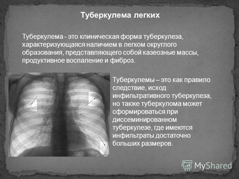 Туберкулема легких Туберкулема - это клиническая форма туберкулеза, характеризующаяся наличием в легком округлого образования, представляющего собой казеозные массы, продуктивное воспаление и фиброз. Туберкулемы – это как правило следствие, исход инф