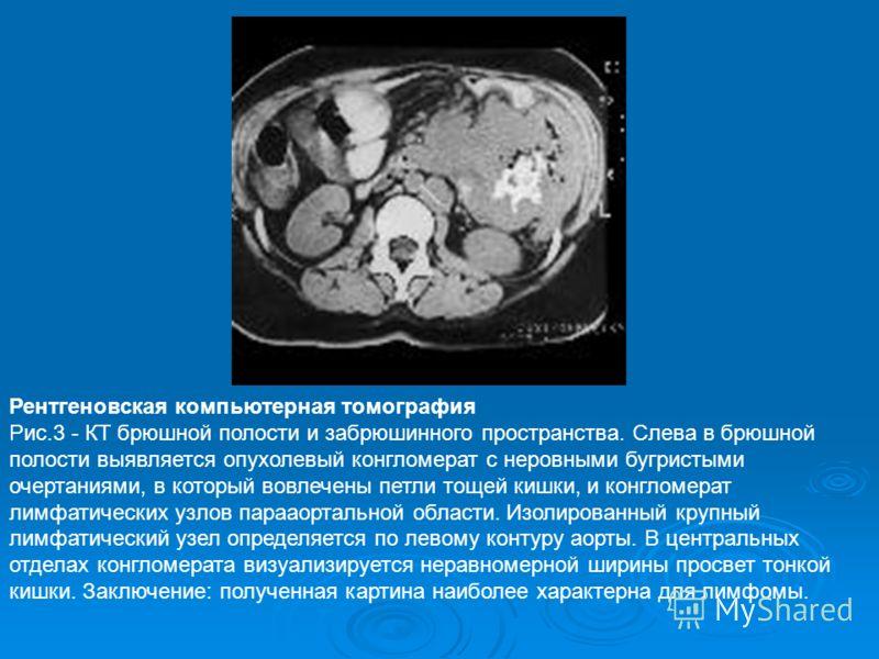 Рентгеновская компьютерная томография Рис.3 - КТ брюшной полости и забрюшинного пространства. Слева в брюшной полости выявляется опухолевый конгломерат с неровными бугристыми очертаниями, в который вовлечены петли тощей кишки, и конгломерат лимфатиче