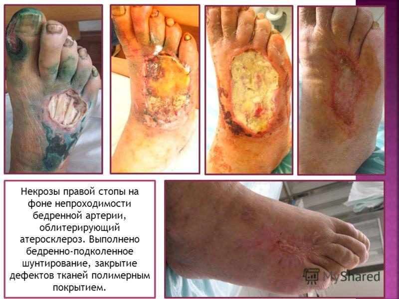 Некрозы правой стопы на фоне непроходимости бедренной артерии, облитерирующий атеросклероз. Выполнено бедренно-подколенное шунтирование, закрытие дефектов тканей полимерным покрытием.