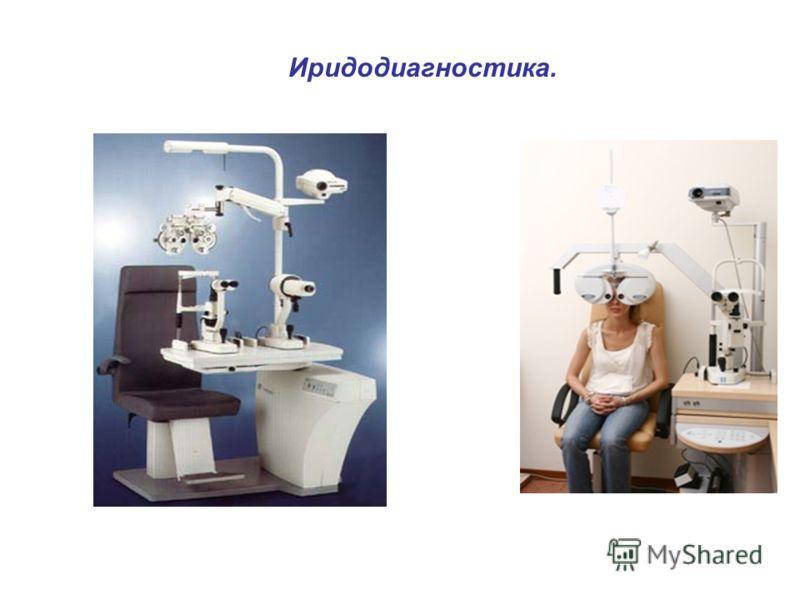 Иридодиагностика.