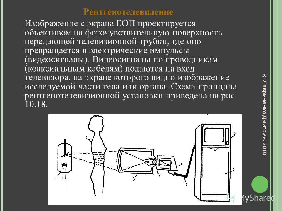 Рентгенотелевидение Изображение с экрана ЕОП проектируется объективом на фоточувствительную поверхность передающей телевизионной трубки, где оно превращается в электрические импульсы (видеосигналы). Видеосигналы по проводникам (коаксиальным кабелям)