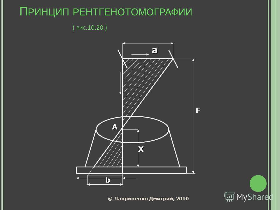 П РИНЦИП РЕНТГЕНОТОМОГРАФИИ ( РИС.10.20.) а А Х F b © Лавриненко Дмитрий, 2010
