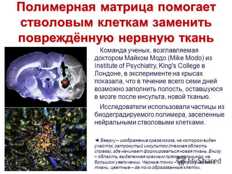 Полимерная матрица помогает стволовым клеткам заменить повреждённую нервную ткань Команда ученых, возглавляемая доктором Майком Модо (Mike Modo) из Institute of Psychiatry, King's College в Лондоне, в эксперименте на крысах показала, что в течение вс