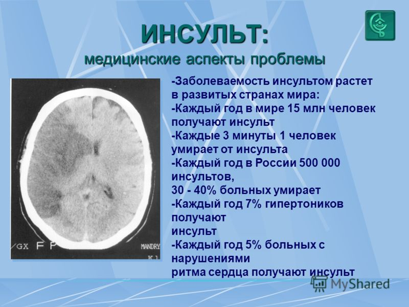Проблемы и перспективы превентивной ангионеврологии Широков Евгений Алексеевич