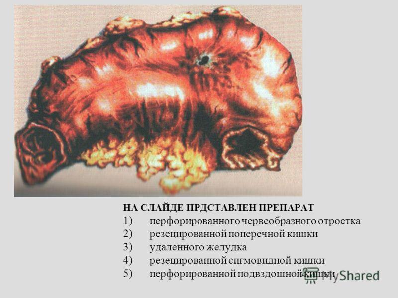 НА СЛАЙДЕ ПРДСТАВЛЕН ПРЕПАРАТ 1)перфорированного червеобразного отростка 2)резецированной поперечной кишки 3)удаленного желудка 4)резецированной сигмовидной кишки 5)перфорированной подвздошной кишки