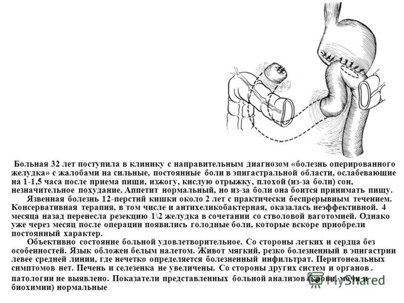 Больная 32 лет поступила в клинику с направительным диагнозом «болезнь оперированного желудка» с жалобами на сильные, постоянные боли в эпигастральной области, ослабевающие на 1-1,5 часа после приема пищи, изжогу, кислую отрыжку, плохой (из-за боли)