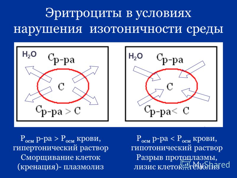 Эритроциты в условиях нарушения изотоничности среды Р осм р-ра > Р осм крови, гипертонический раствор Сморщивание клеток (кренация)- плазмолиз Р осм р-ра < Р осм крови, гипотонический раствор Разрыв протоплазмы, лизис клеток - гемолиз Н2ОН2О Н2ОН2О