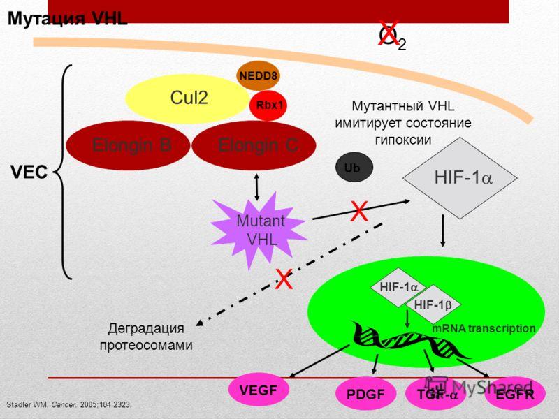 Мутация VHL Stadler WM. Cancer. 2005;104:2323. O2O2 VEC Cul2 Mutant VHL Rbx1 NEDD8 Elongin B Elongin C Деградация протеосомами X X HIF-1 X Мутантный VHL имитирует состояние гипоксии HIF-1 mRNA transcription VEGFPDGF TGF- EGFR Ub