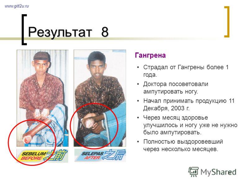 36 Результат 8 www.gitl2u.ru Гангрена Страдал от Гангрены более 1 года. Доктора посоветовали ампутировать ногу. Начал принимать продукцию 11 Декабря, 2003 г. Через месяц здоровье улучшилось и ногу уже не нужно было ампутировать. Полностью выздоровевш