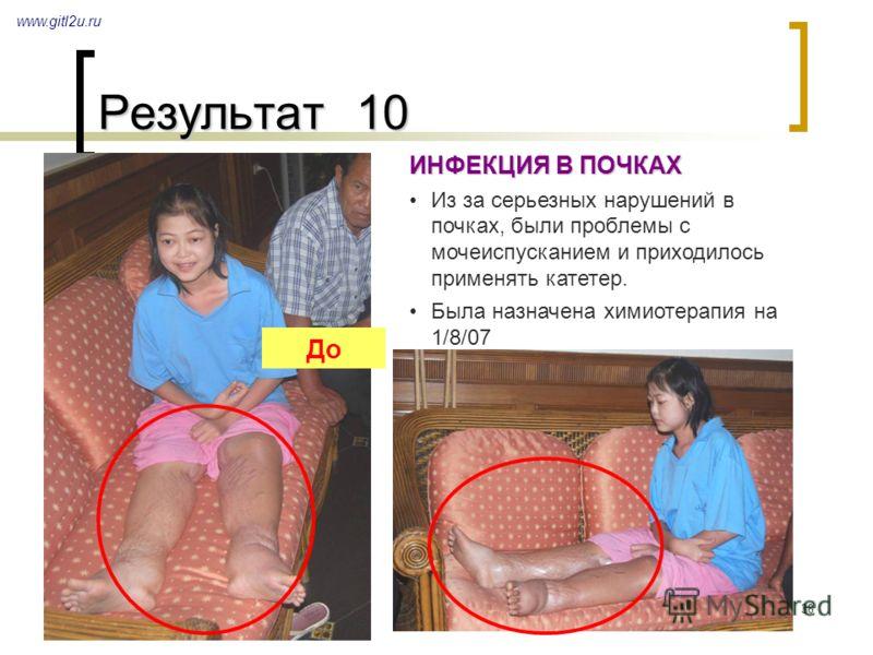 38 Результат 10 www.gitl2u.ru ИНФЕКЦИЯ В ПОЧКАХ Из за серьезных нарушений в почках, были проблемы с мочеиспусканием и приходилось применять катетер. Была назначена химиотерапия на 1/8/07 До
