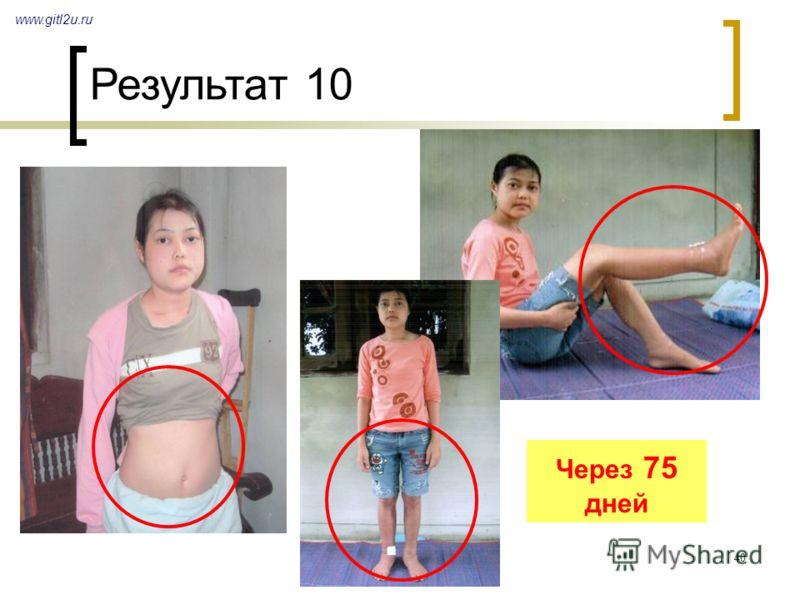 40 Через 75 дней Результат 10 www.gitl2u.ru
