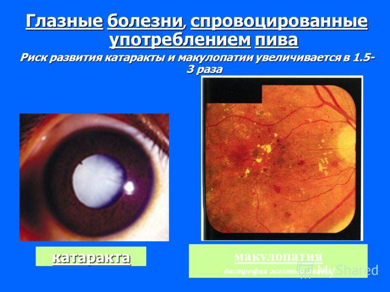 катаракта Глазные болезни, спровоцированные употреблением пива Риск развития катаракты и макулопатии увеличивается в 1.5- 3 раза макулопатия дистрофия желтого пятна