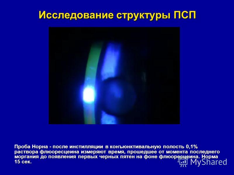 Исследование структуры ПСП Проба Норна - после инстилляции в конъюнктивальную полость 0,1% раствора флюоресцеина измеряют время, прошедшее от момента последнего моргания до появления первых черных пятен на фоне флюоресцеина. Норма 15 сек.