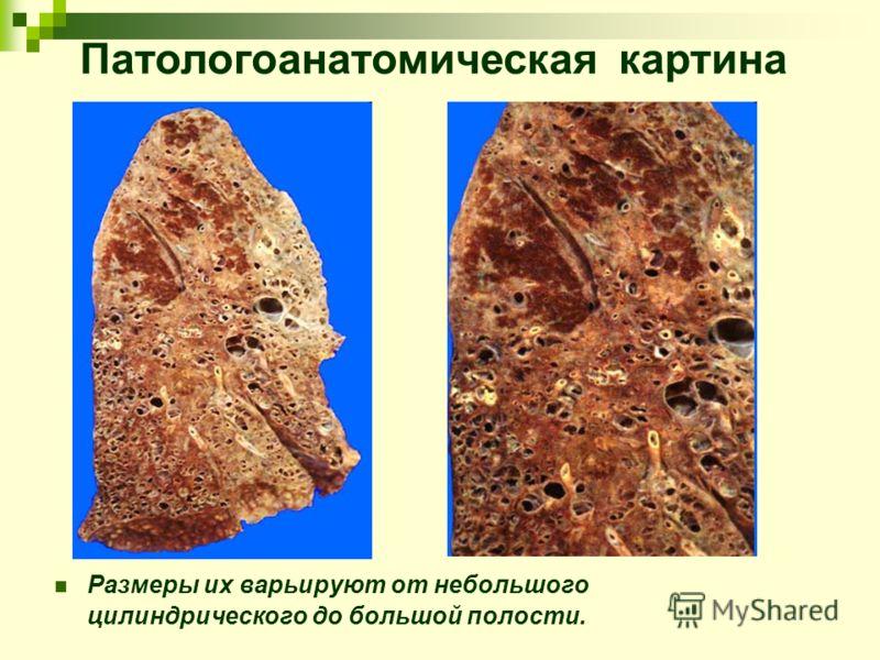 Патологоанатомическая картина Размеры их варьируют от небольшого цилиндрического до большой полости.