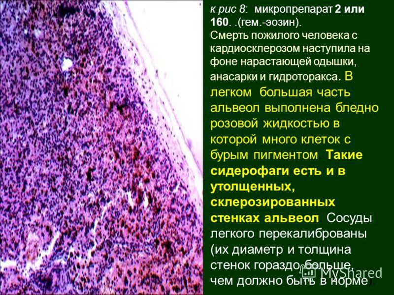 к рис 8: микропрепарат 2 или 160..(гем.-эозин). Смерть пожилого человека с кардиосклерозом наступила на фоне нарастающей одышки, анасарки и гидроторакса. В легком большая часть альвеол выполнена бледно розовой жидкостью в которой много клеток с бурым