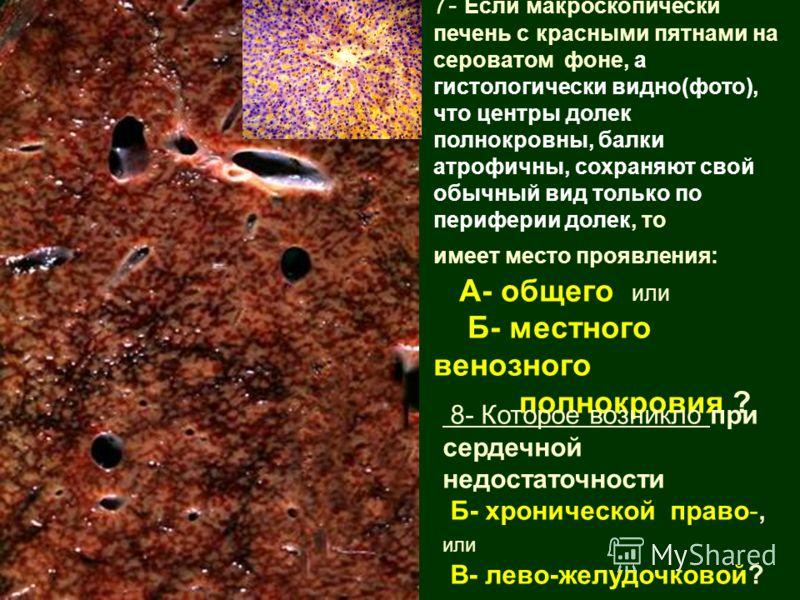 7- Если макроскопически печень с красными пятнами на сероватом фоне, а гистологически видно(фото), что центры долек полнокровны, балки атрофичны, сохраняют свой обычный вид только по периферии долек, то имеет место проявления: А- общего или Б- местно