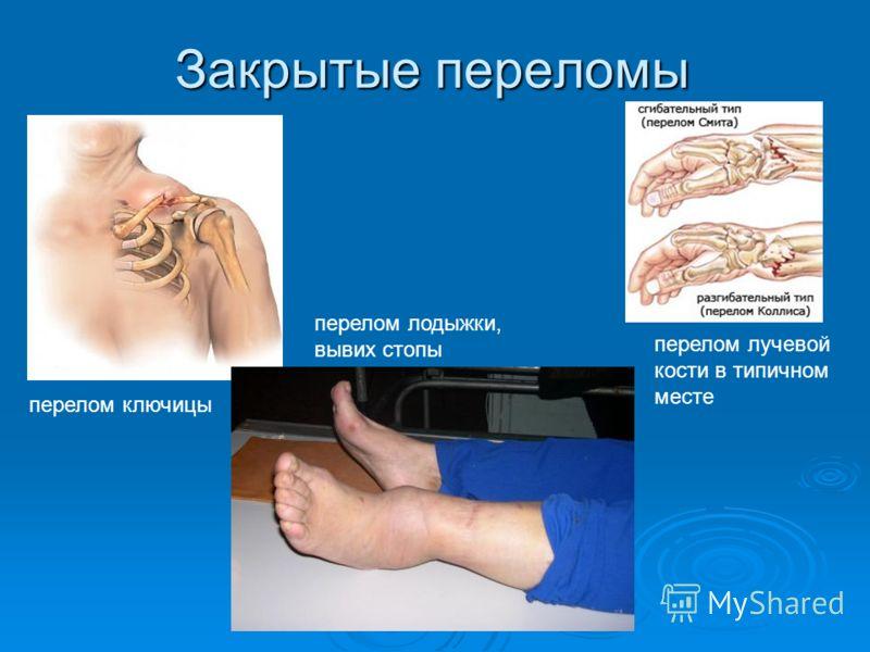 Закрытые переломы перелом ключицы перелом лодыжки, вывих стопы перелом лучевой кости в типичном месте