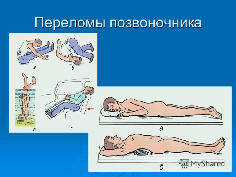 Переломы позвоночника