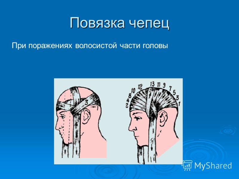 Повязка чепец При поражениях волосистой части головы