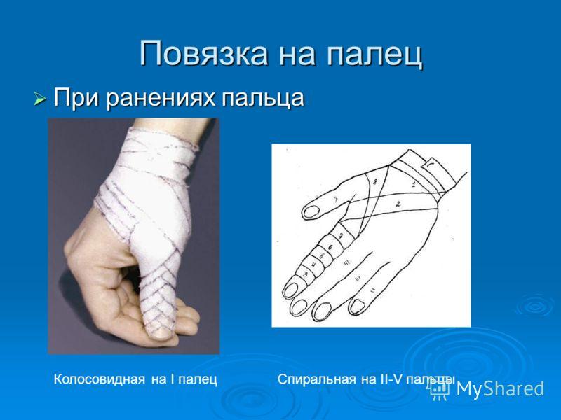 Повязка на палец При ранениях пальца При ранениях пальца Колосовидная на I палецСпиральная на II-V пальцы