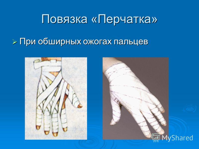 Повязка «Перчатка» При обширных ожогах пальцев При обширных ожогах пальцев