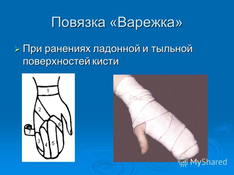 Повязка «Варежка» При ранениях ладонной и тыльной поверхностей кисти При ранениях ладонной и тыльной поверхностей кисти